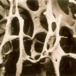 Maintain Bone Density